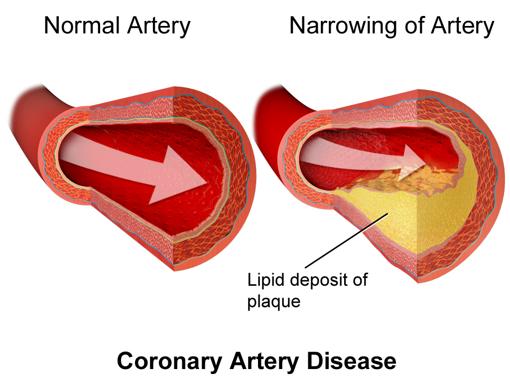 EDTA Removes Plaque From Arteries